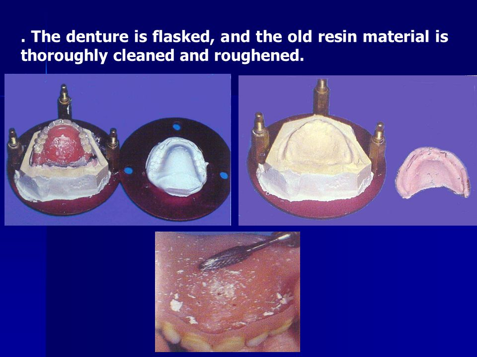 New acrylic resin material is packed, and the denture is cured in pressure curing unit containing water at 45°c for 20 min.