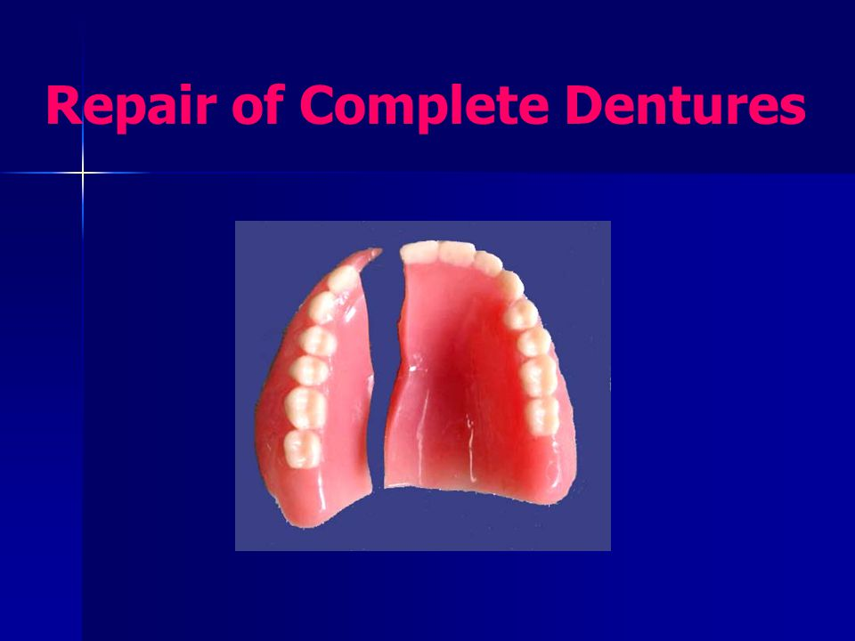 Dentures may fracture during function dropped on hard surface Key of repair = accurate reassembling & alignment of the broken parts in their original position.
