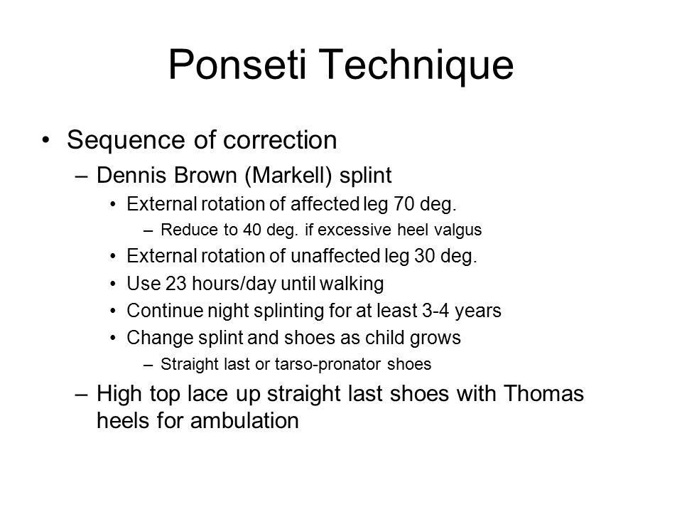Ponseti Technique Sequence of correction –Dennis Brown (Markell) splint External rotation of affected leg 70 deg. –Reduce to 40 deg. if excessive heel