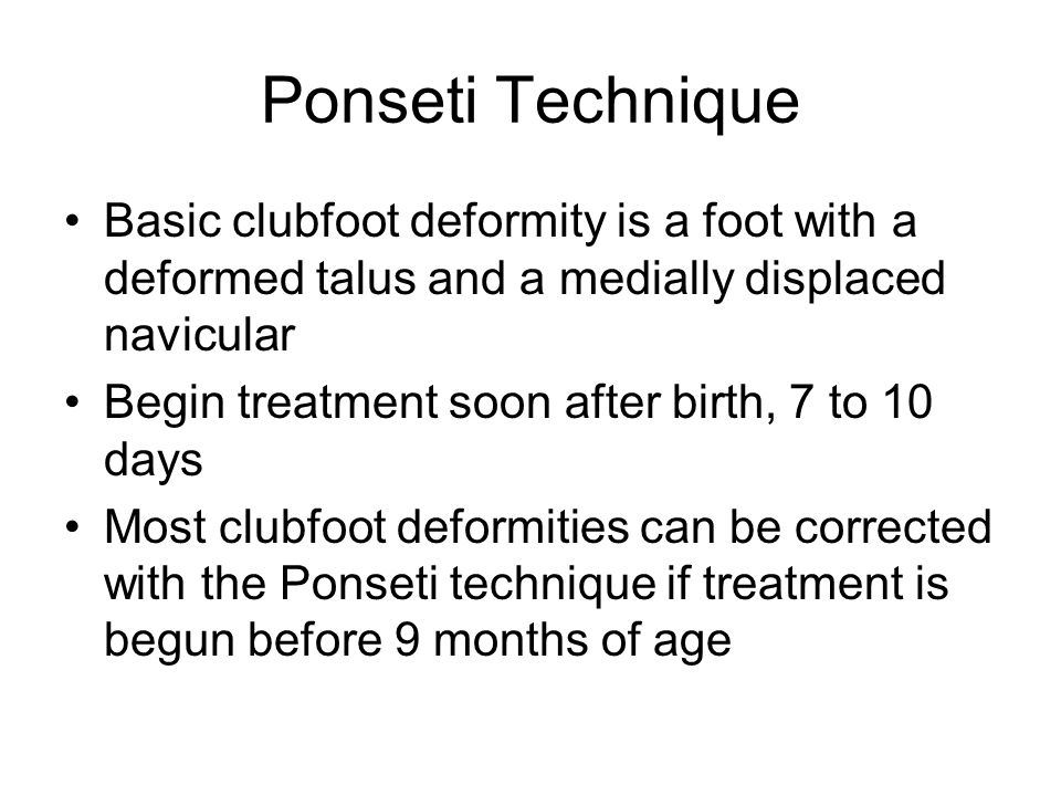 Ponseti Technique Basic clubfoot deformity is a foot with a deformed talus and a medially displaced navicular Begin treatment soon after birth, 7 to 1