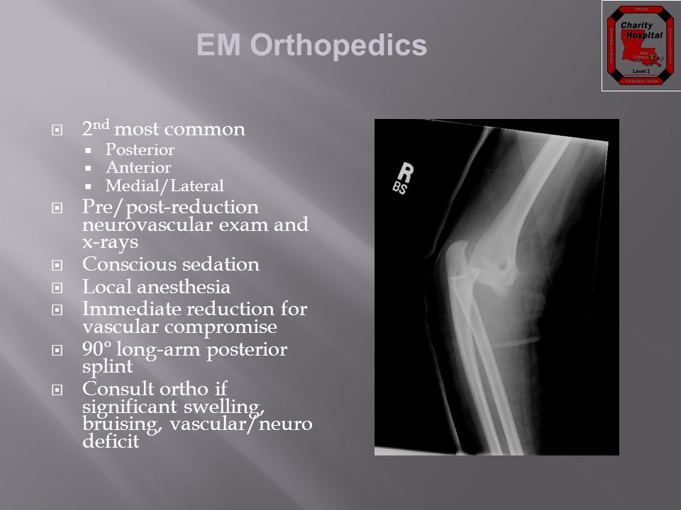EM Orthopedics  2 nd most common  Posterior  Anterior  Medial/Lateral  Pre/post-reduction neurovascular exam and x-rays  Conscious sedation  Lo
