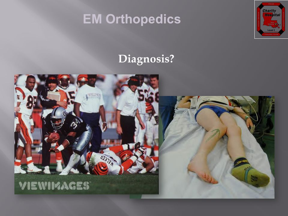 EM Orthopedics Diagnosis?