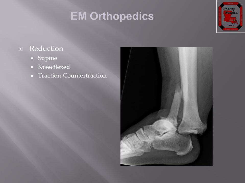 EM Orthopedics  Reduction  Supine  Knee flexed  Traction-Countertraction