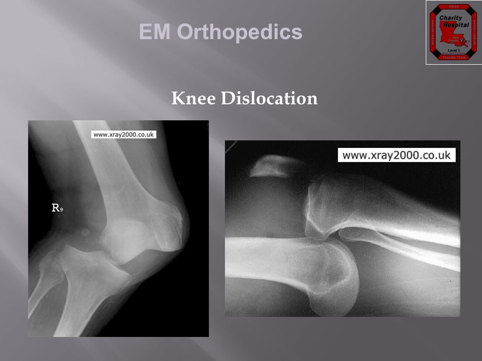 EM Orthopedics Knee Dislocation