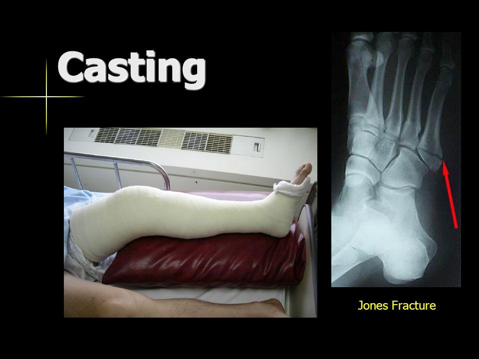 Casting Jones Fracture