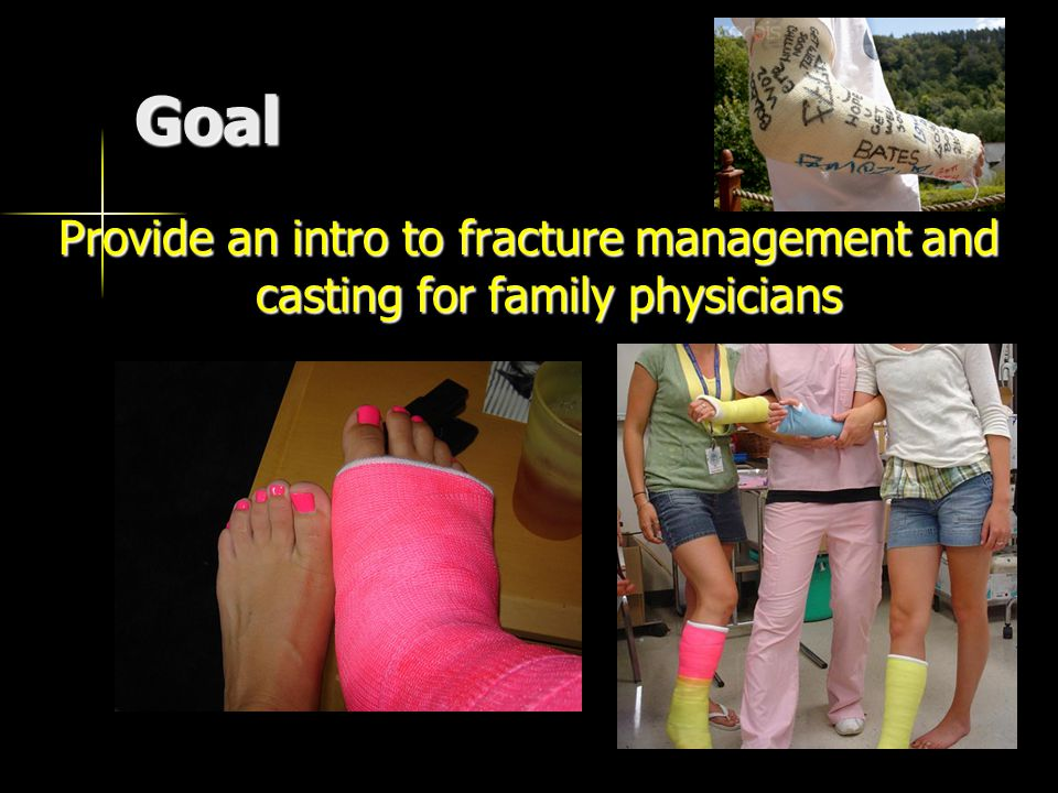 Goal Provide an intro to fracture management and casting for family physicians
