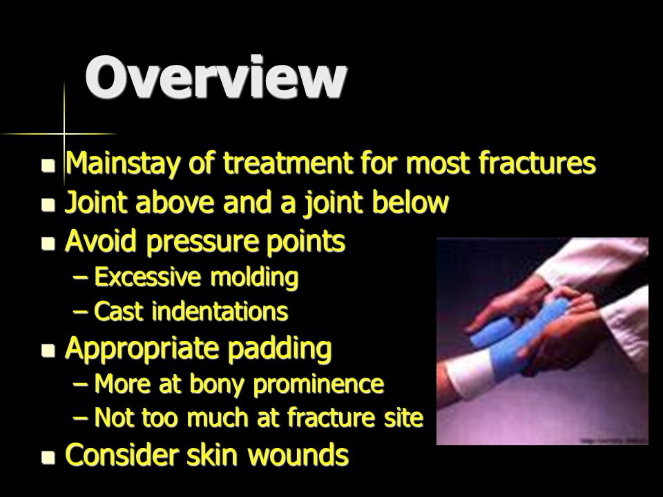 Overview Mainstay of treatment for most fractures Mainstay of treatment for most fractures Joint above and a joint below Joint above and a joint below Avoid pressure points Avoid pressure points –Excessive molding –Cast indentations Appropriate padding Appropriate padding –More at bony prominence –Not too much at fracture site Consider skin wounds Consider skin wounds