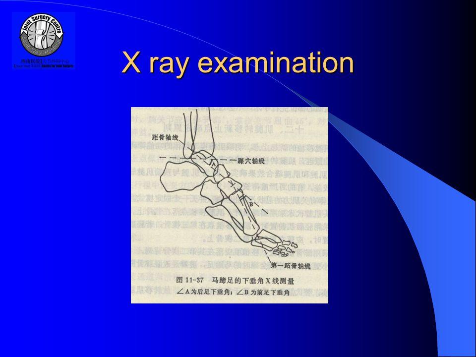 X ray examination