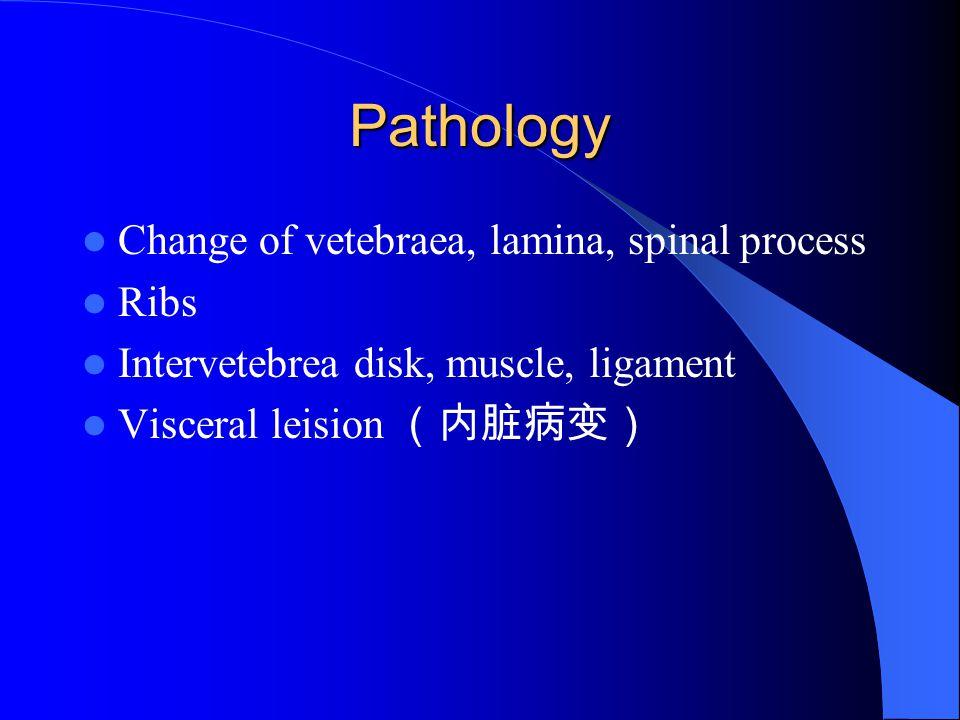 Pathology Change of vetebraea, lamina, spinal process Ribs Intervetebrea disk, muscle, ligament Visceral leision (内脏病变)
