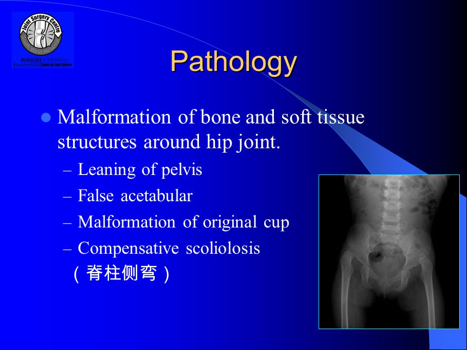 Pathology Malformation of bone and soft tissue structures around hip joint.