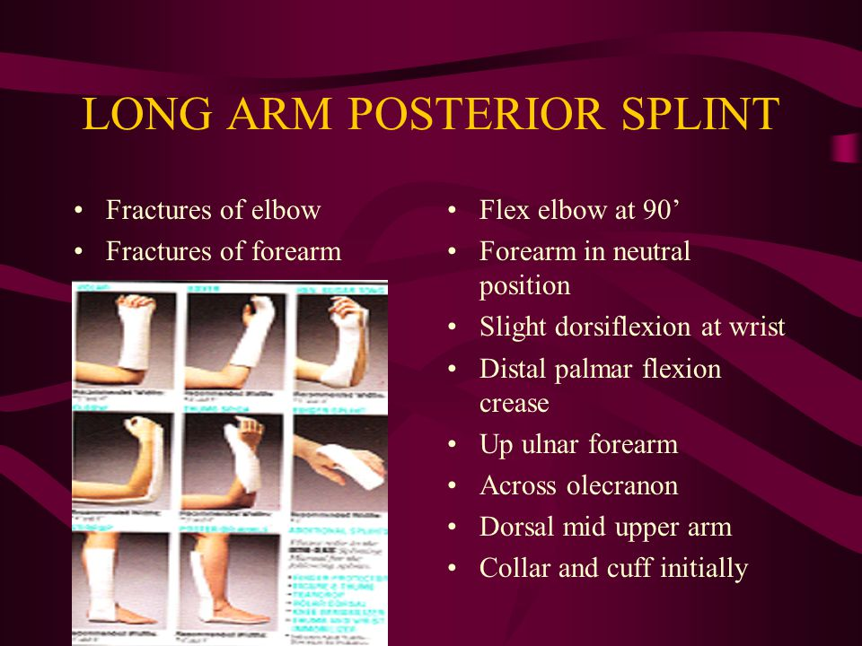 LONG ARM POSTERIOR SPLINT Fractures of elbow Fractures of forearm Flex elbow at 90' Forearm in neutral position Slight dorsiflexion at wrist Distal pa