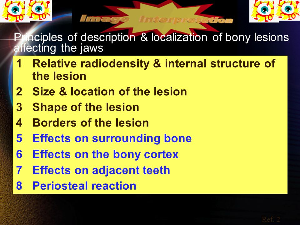 Principles of description & localization of bony lesions affecting the jaws 1Relative radiodensity & internal structure of the lesion 2Size & location of the lesion 3Shape of the lesion 4Borders of the lesion 5Effects on surrounding bone 6Effects on the bony cortex 7Effects on adjacent teeth 8Periosteal reaction Ref.