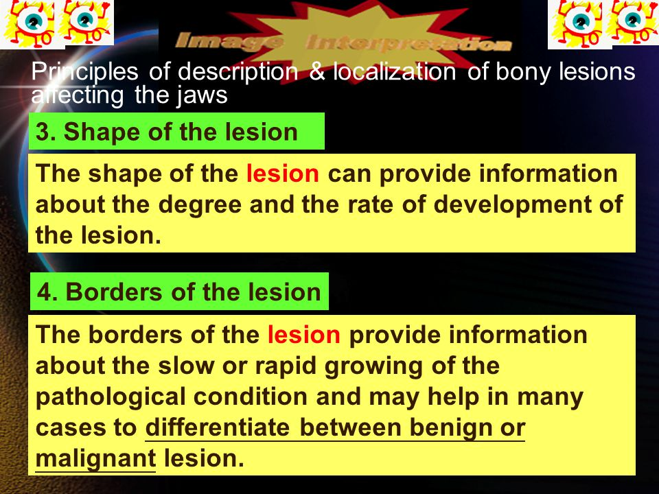Principles of description & localization of bony lesions affecting the jaws 3.