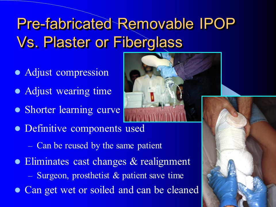 Pre-fabricated Removable IPOP Vs. Plaster or Fiberglass Adjust compression Adjust wearing time Shorter learning curve Definitive components used – Can