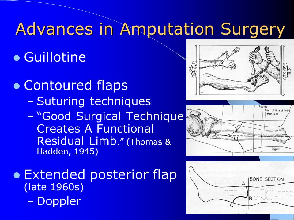 "Advances in Amputation Surgery Guillotine Contoured flaps – Suturing techniques – ""Good Surgical Technique Creates A Functional Residual Limb."" (Thoma"