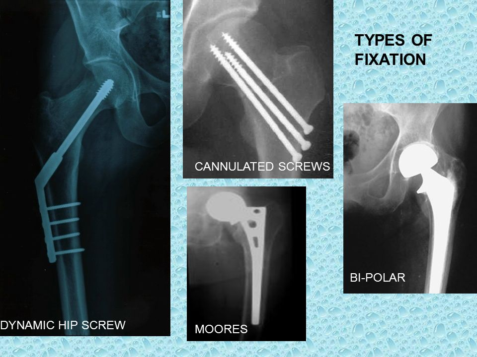 TYPES OF FIXATION DYNAMIC HIP SCREW MOORES BI-POLAR CANNULATED SCREWS
