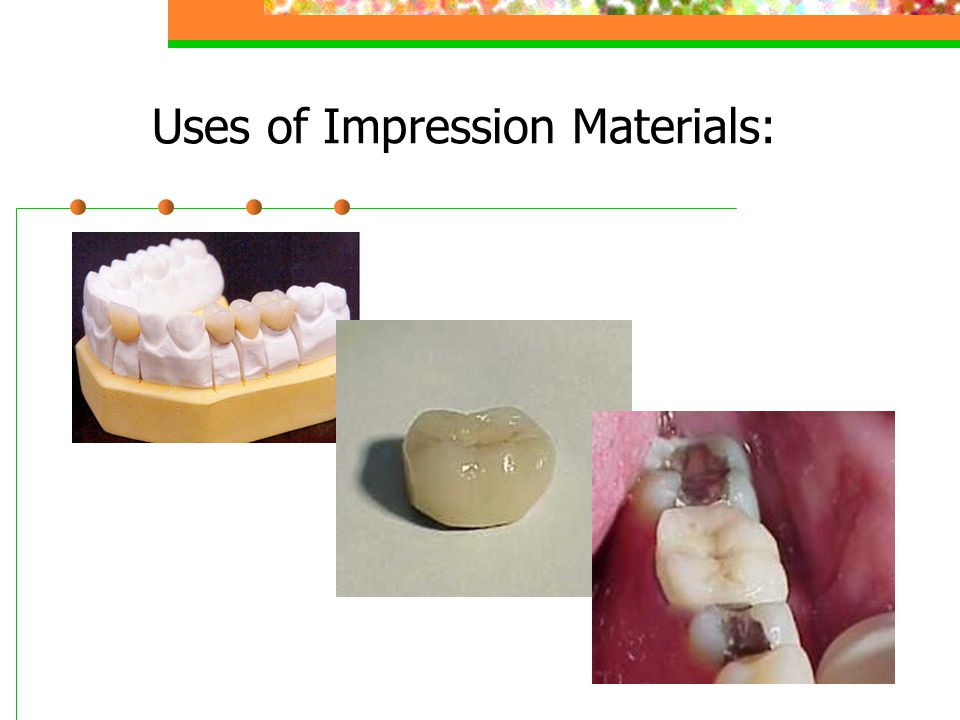 Characteristics of Impression Materials: Fluid enough to flow around area of interest Must set in reasonable amount of time Can remove from mouth without distortion No harmful effects on tissues Relatively tasteless & odorless Dimensionally stable until a cast is created Give detailed reproduction Compatible with cast materials