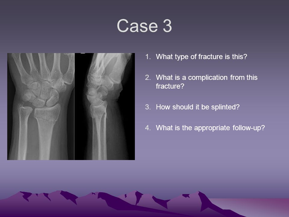Case 3 1.What type of fracture is this. 2.What is a complication from this fracture.