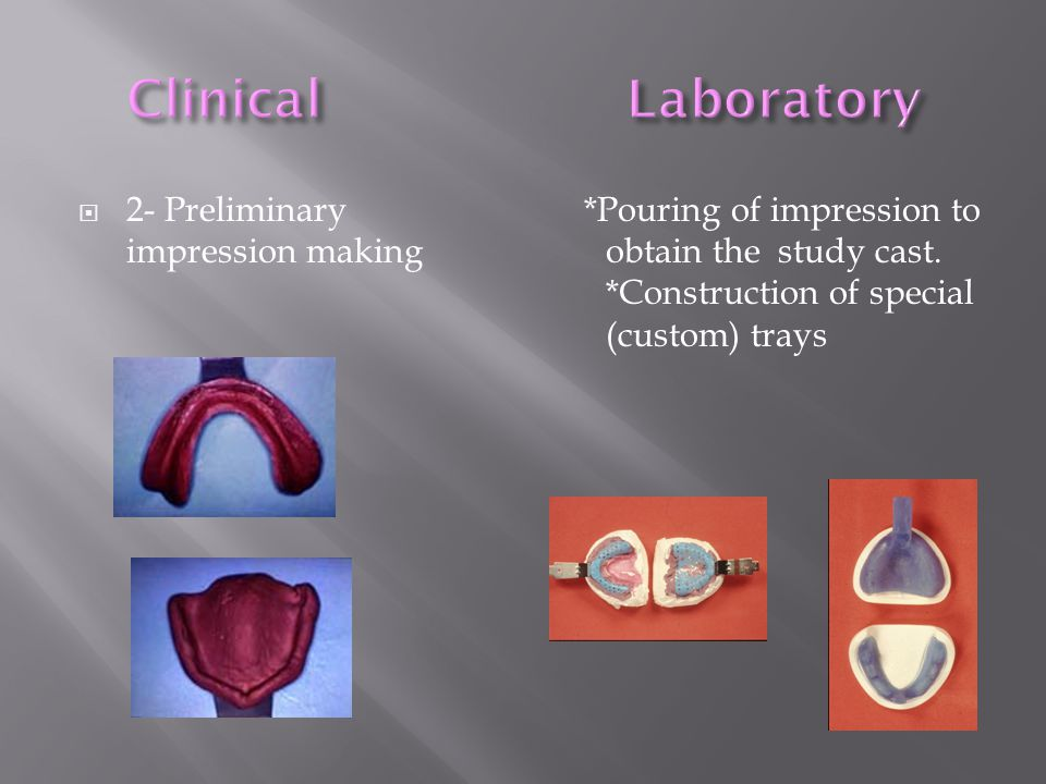 *Pouring of impression to obtain the study cast. *Construction of special (custom) trays  2- Preliminary impression making