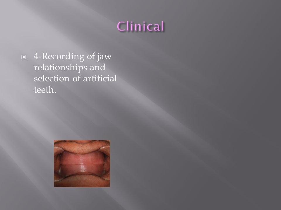  4-Recording of jaw relationships and selection of artificial teeth.