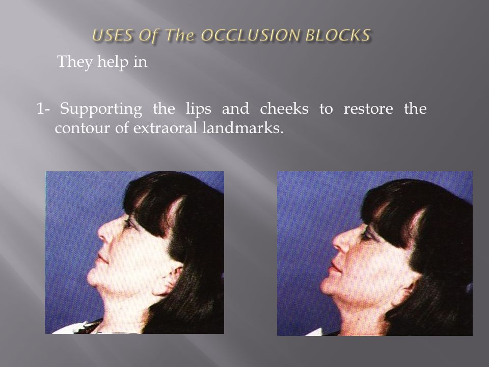 2-The orientation of the occlusal plane.