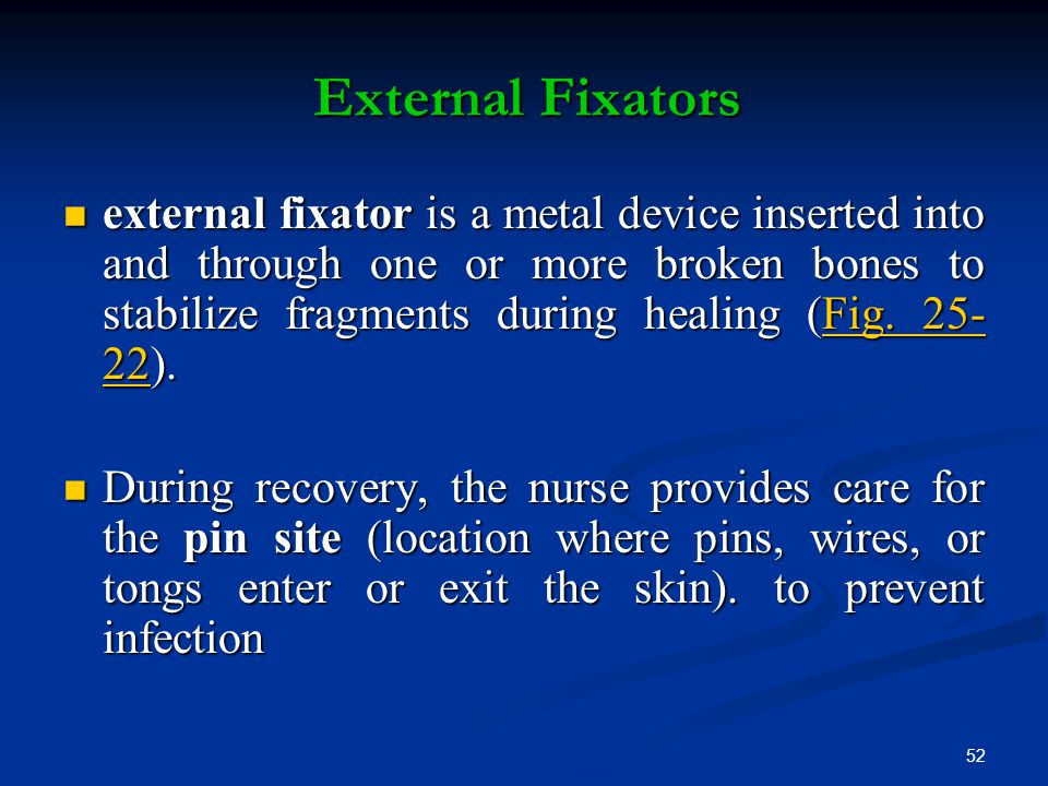 52 External Fixators external fixator is a metal device inserted into and through one or more broken bones to stabilize fragments during healing (Fig.