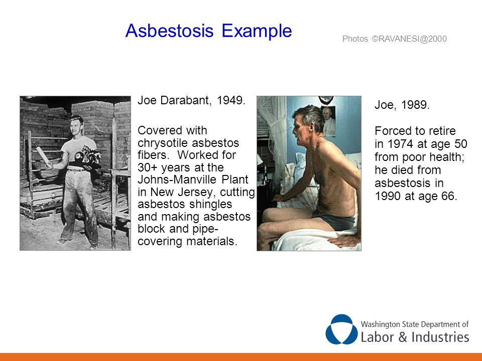 Asbestosis Example Joe Darabant, 1949. Covered with chrysotile asbestos fibers. Worked for 30+ years at the Johns-Manville Plant in New Jersey, cuttin