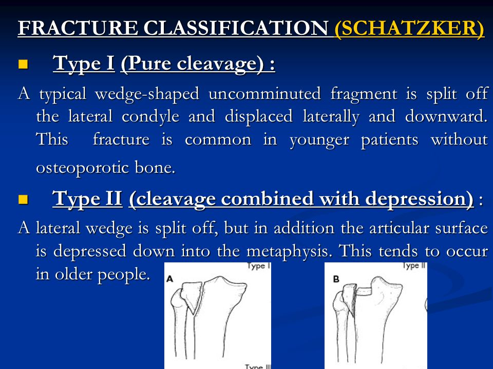 FRACTURE CLASSIFICATION (SCHATZKER) Type I (Pure cleavage) : Type I (Pure cleavage) : A typical wedge-shaped uncomminuted fragment is split off the lateral condyle and displaced laterally and downward.