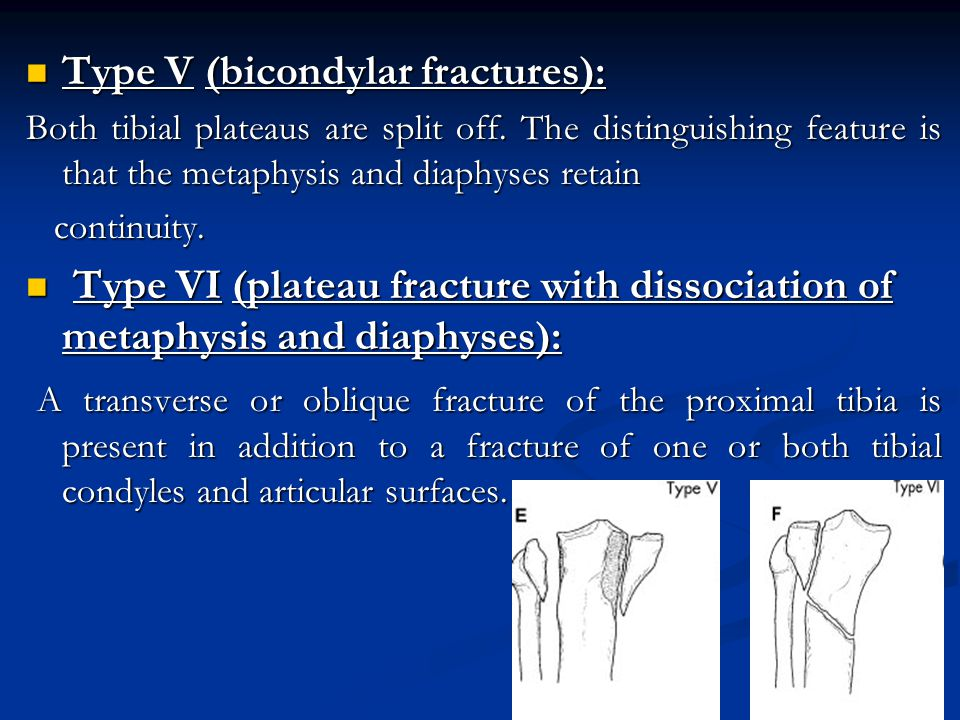 Type V (bicondylar fractures): Type V (bicondylar fractures): Both tibial plateaus are split off.