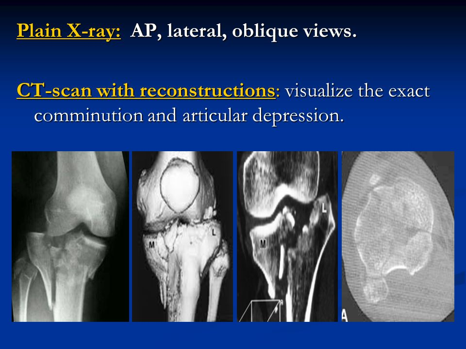 Plain X-ray: AP, lateral, oblique views.