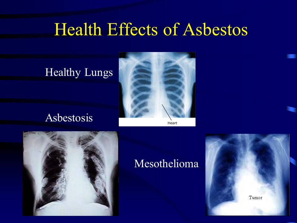 Health Effects of Asbestos Healthy Lungs Asbestosis Mesothelioma