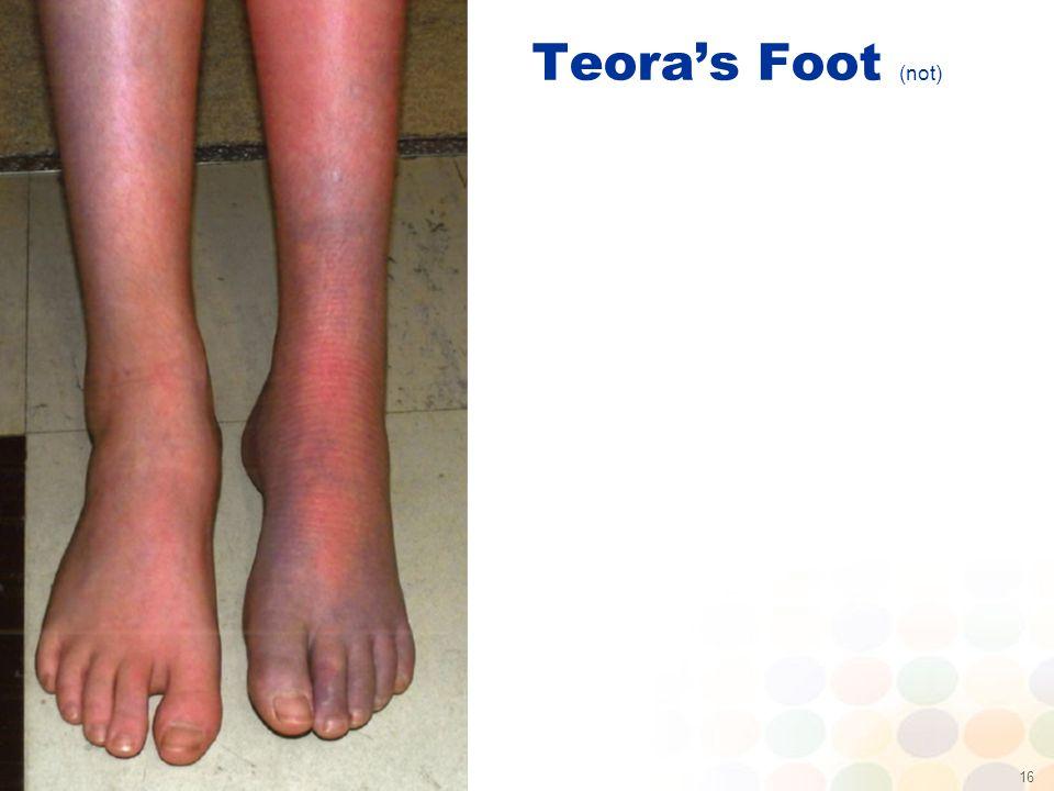 16 Teora's Foot (not)