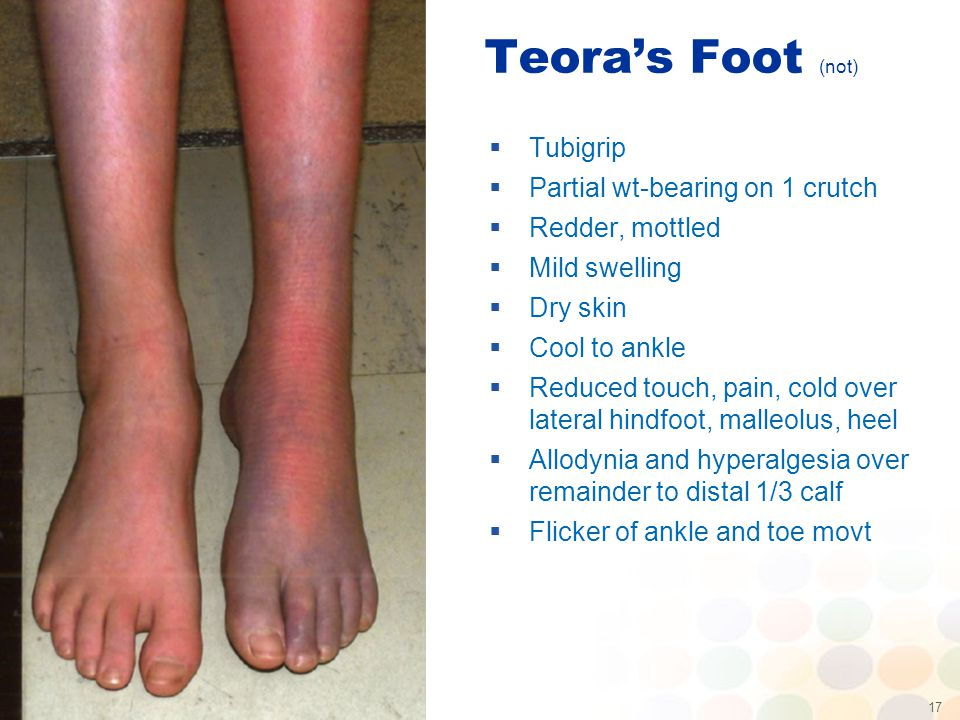 17 Teora's Foot (not)  Tubigrip  Partial wt-bearing on 1 crutch  Redder, mottled  Mild swelling  Dry skin  Cool to ankle  Reduced touch, pain, cold over lateral hindfoot, malleolus, heel  Allodynia and hyperalgesia over remainder to distal 1/3 calf  Flicker of ankle and toe movt