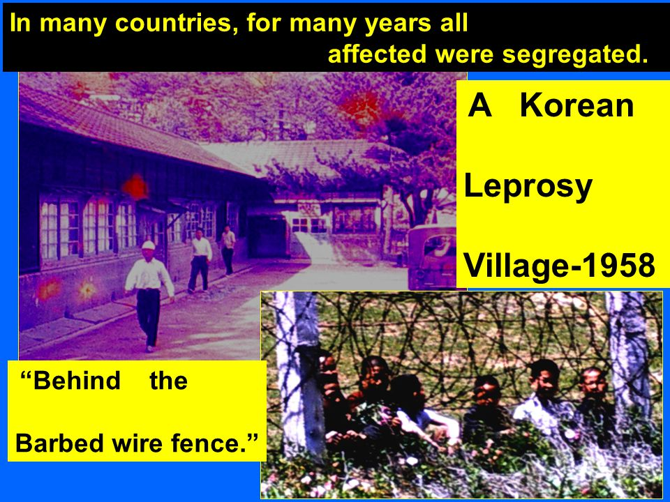 Behind the Barbed wire fence. A Korean Leprosy Village-1958 In many countries, for many years all affected were segregated.
