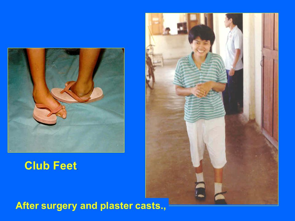 Club Feet. After surgery and plaster casts.,