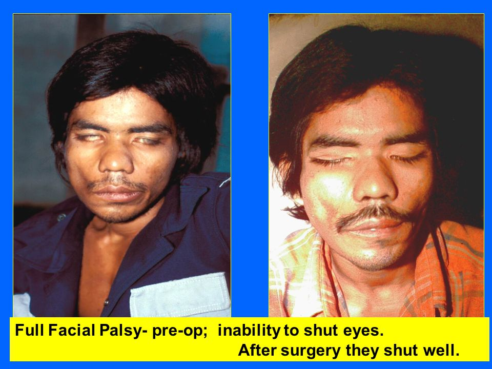 Full Facial Palsy- pre-op; inability to shut eyes. After surgery they shut well.
