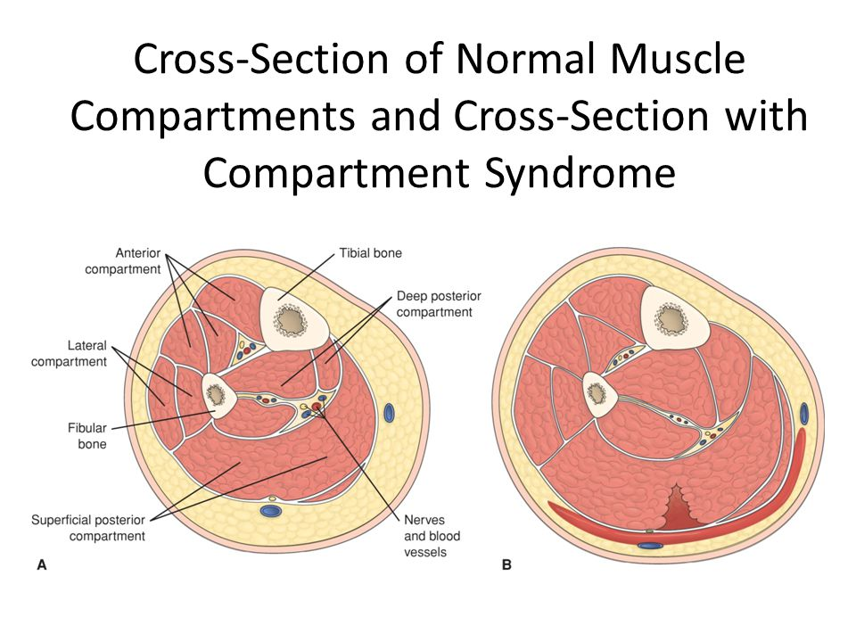 Cross-Section of Normal Muscle Compartments and Cross-Section with Compartment Syndrome