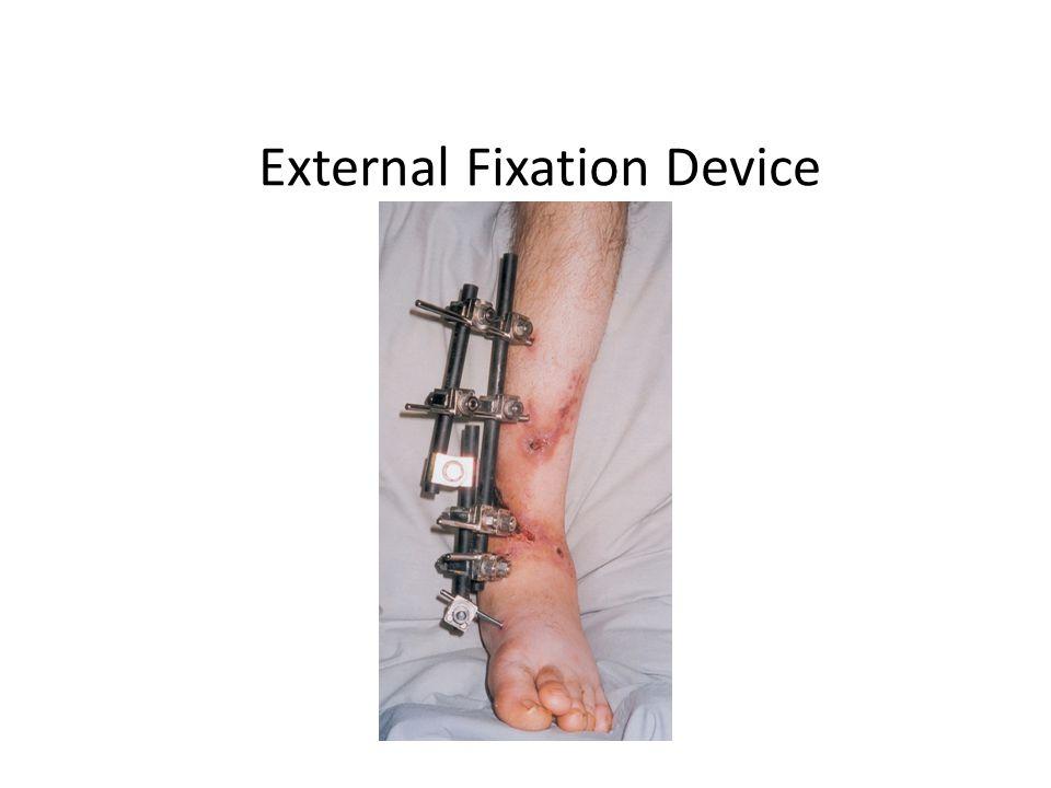 External Fixation Device
