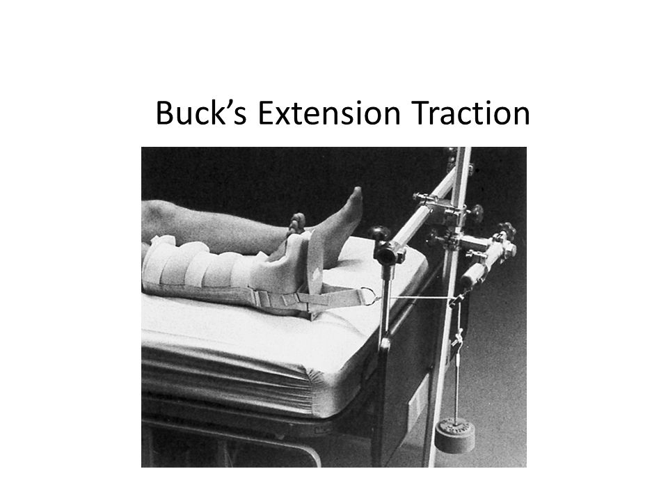 Buck's Extension Traction