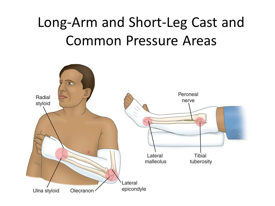 Long-Arm and Short-Leg Cast and Common Pressure Areas