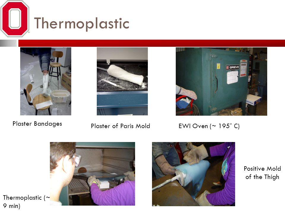 Thermoplastic Plaster Bandages Plaster of Paris Mold EWI Oven (~ 195 ˚ C ) Thermoplastic (~ 9 min) Positive Mold of the Thigh