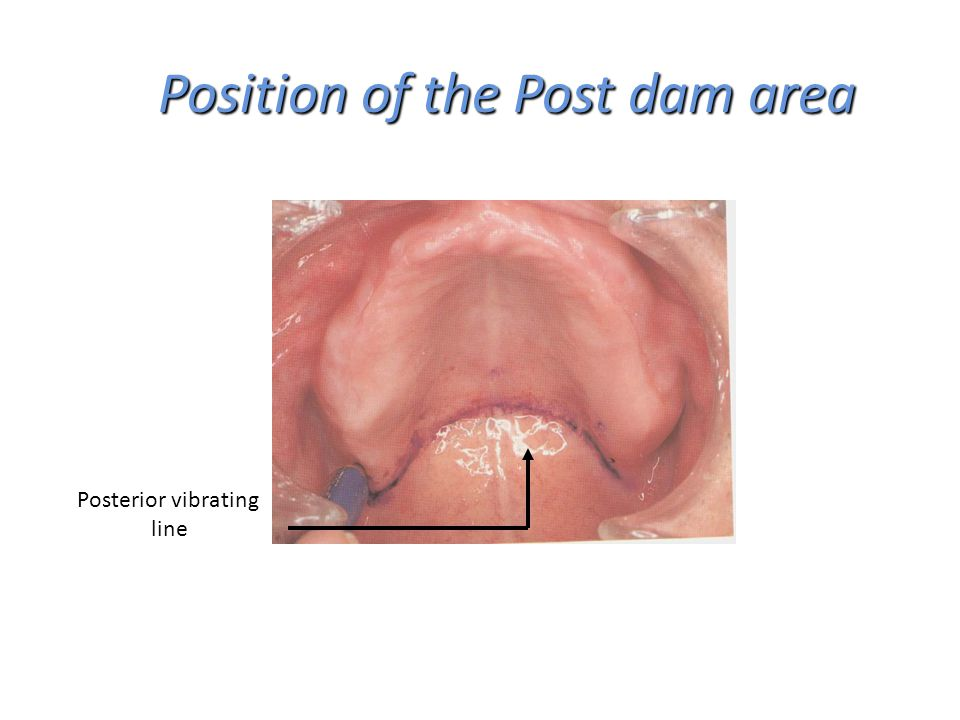 Position of the Post dam area Position of the Post dam area Posterior vibrating line