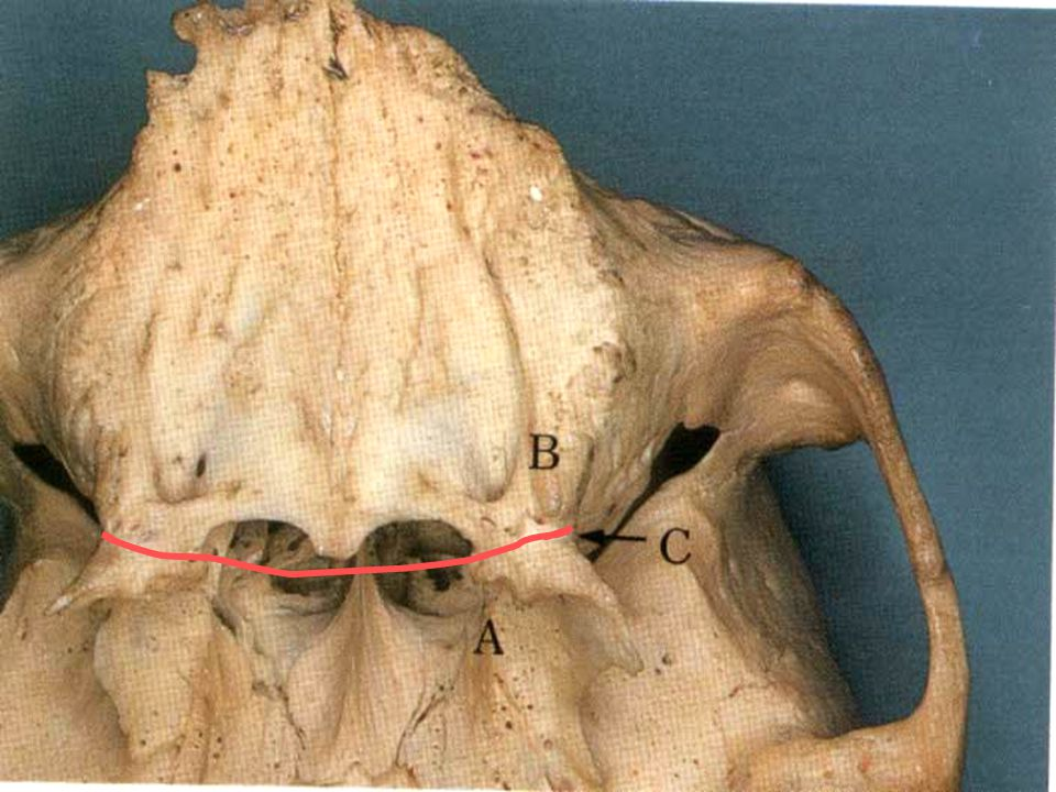 Functions of posterior palatal seal 1.Retention of maxillary denture.