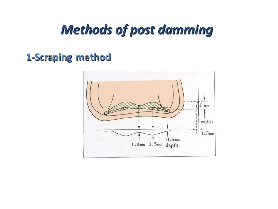 Methods of post damming 1-Scraping method 1-Scraping method