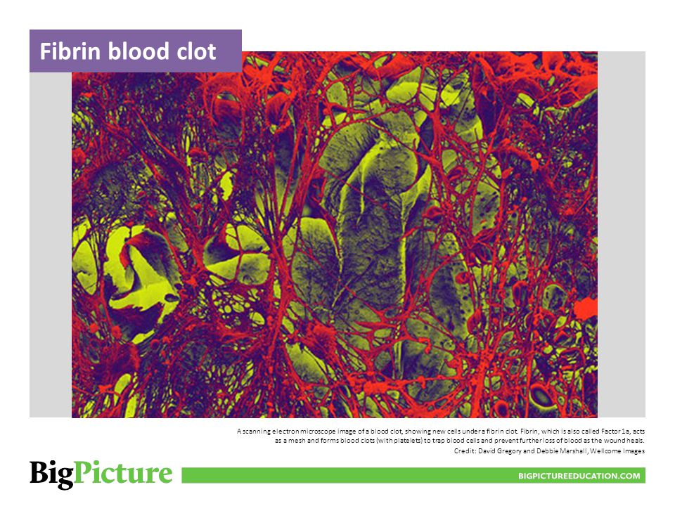 A scanning electron microscope image of a blood clot, showing new cells under a fibrin clot. Fibrin, which is also called Factor 1a, acts as a mesh an