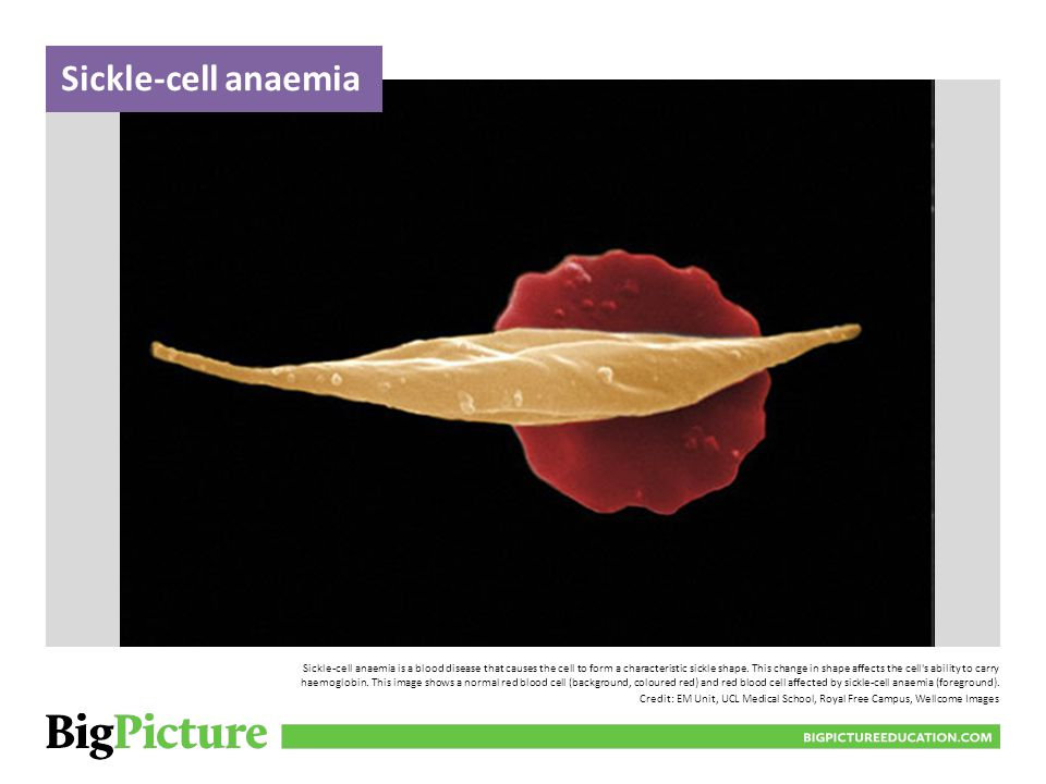 Sickle-cell anaemia is a blood disease that causes the cell to form a characteristic sickle shape. This change in shape affects the cell's ability to