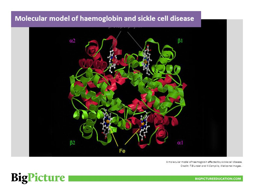 A molecular model of haemoglobin affected by sickle cell disease. Credit: T Blundell and N Campillo, Wellcome Images.. Molecular model of haemoglobin