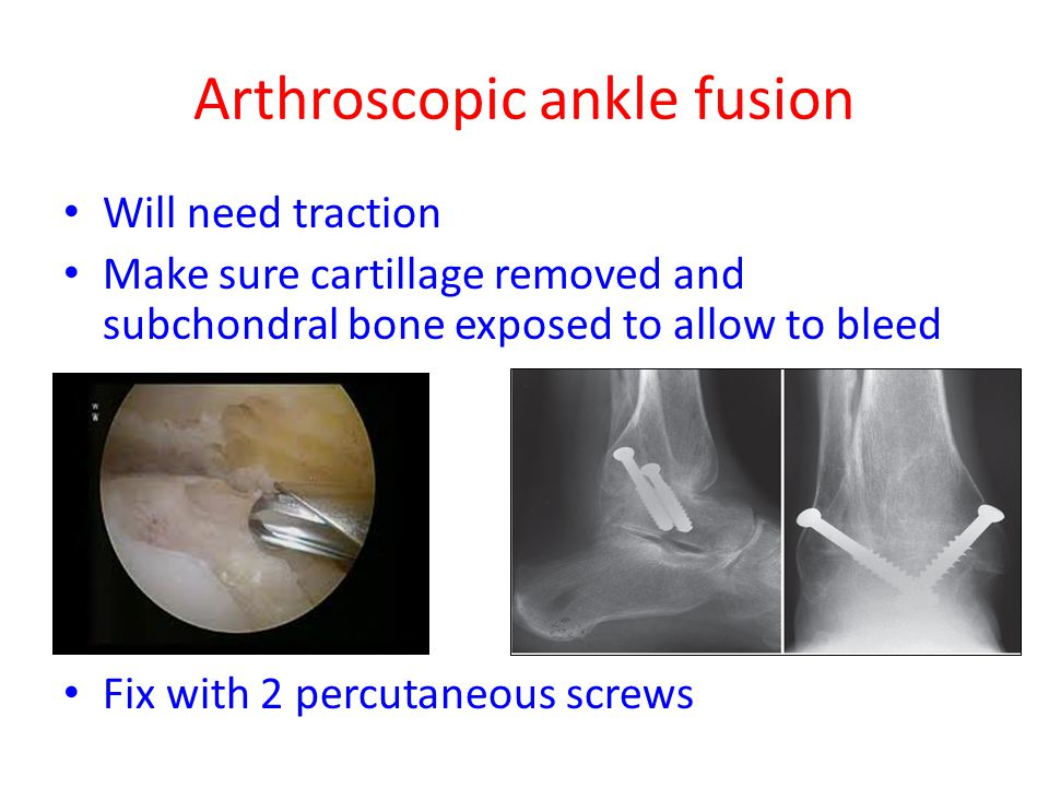 Arthroscopic ankle fusion Will need traction Make sure cartillage removed and subchondral bone exposed to allow to bleed Fix with 2 percutaneous screw