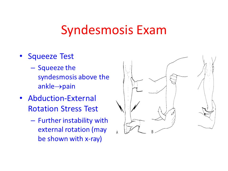 Syndesmosis Exam Squeeze Test – Squeeze the syndesmosis above the ankle  pain Abduction-External Rotation Stress Test – Further instability with exte