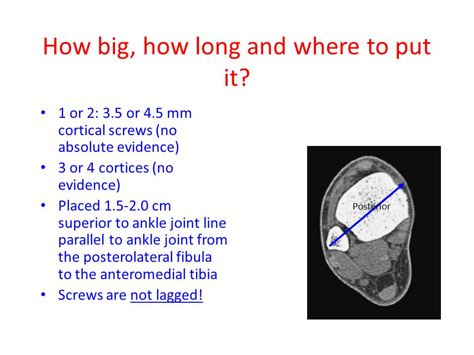 How big, how long and where to put it? 1 or 2: 3.5 or 4.5 mm cortical screws (no absolute evidence) 3 or 4 cortices (no evidence) Placed 1.5-2.0 cm su